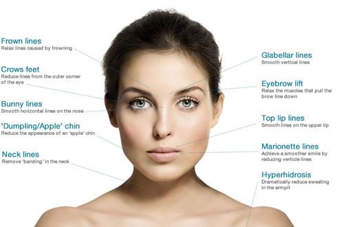 botox anti-aging